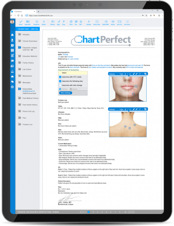 ChartPerfect EHR customizable notes and forms for dermatology practices